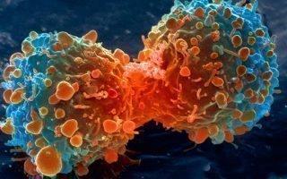 Причины появления рака от нервов