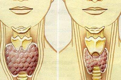 Курение и щитовидка