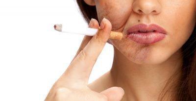как влияет курение на кожу лица